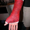 Looking to buy a wrist cast for $$